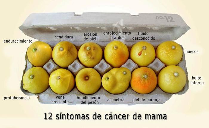 limones-cancer-mama