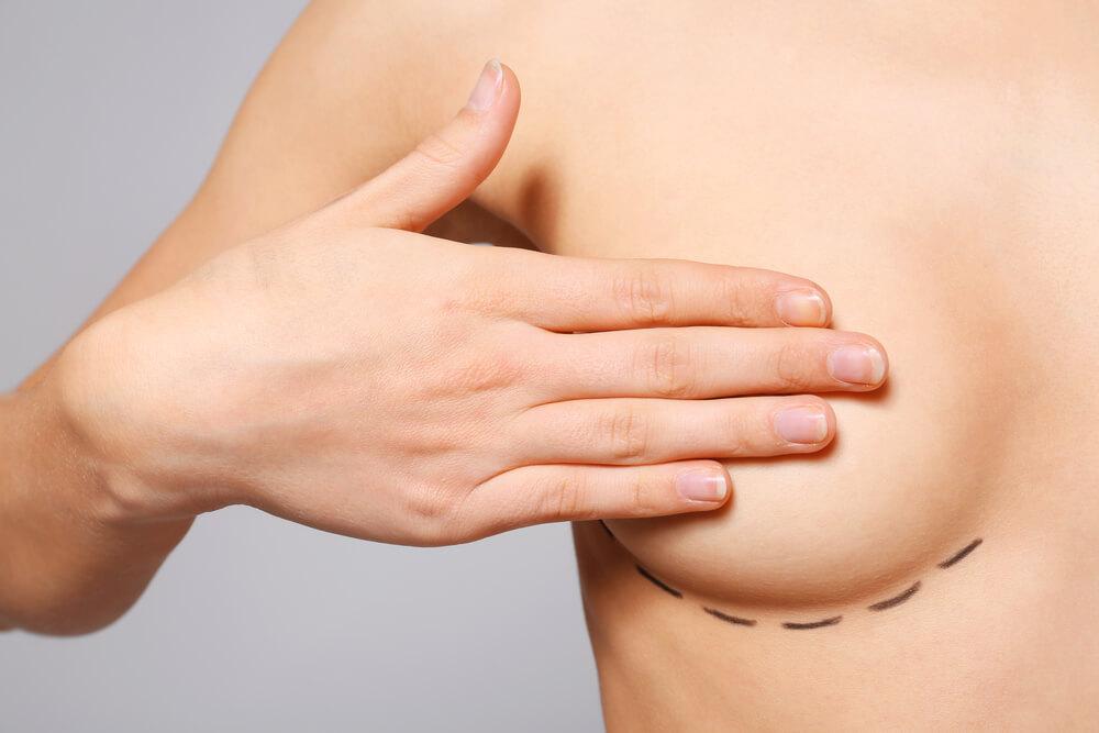 cirugia aumento de senos