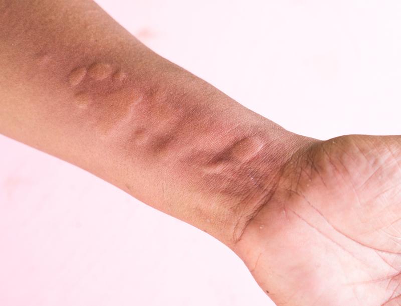 dermografismos urticaria